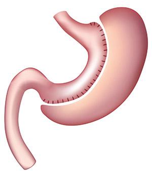 Manga Gástrica o Sleeve gastrectomy
