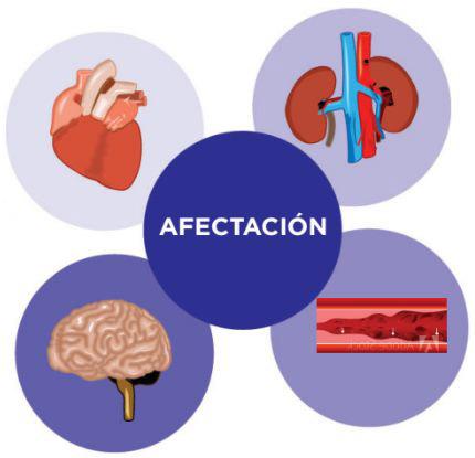 Afectación Hipertensión Arterial | Hospital Universitario Austral | Instituto de Cardiología y Terapéutica Cardiovascular